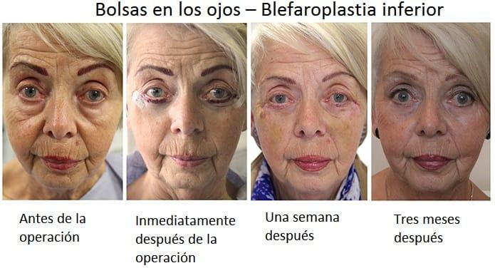 bolsas en los ojos blafaroplastia inferior