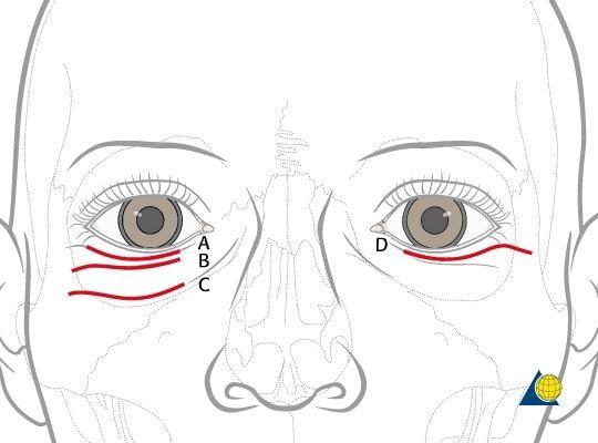 Blefaroplastia inferior 2