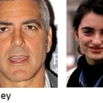La blefaroplastia en famosos