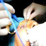 Complicaciones de la Blefaroplastia