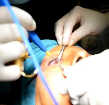 Las complicaciones de la blefaroplastia suelen ser menores