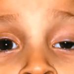Ptosis palpebral