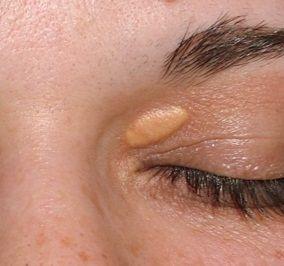 Los xantelasmas, son tumores benignos que suelen aparecer alrededor de los párpados