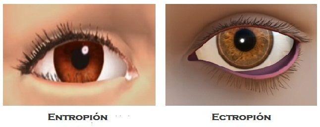 El entropión y ectropión palpebral son trastornos del párpado