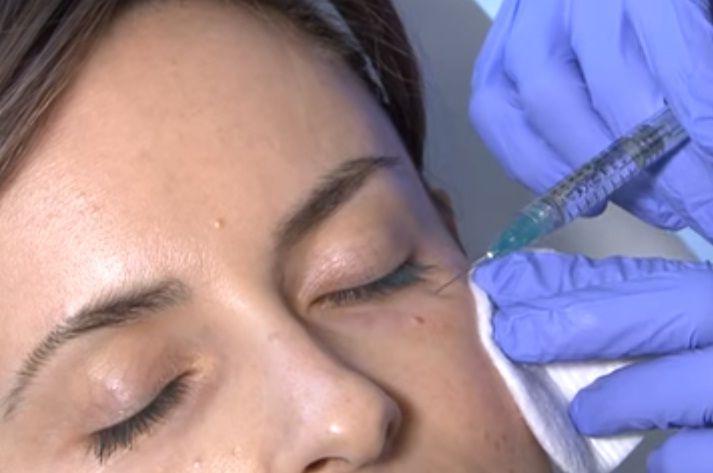 La blefaroplastia química es una técnica innovadora
