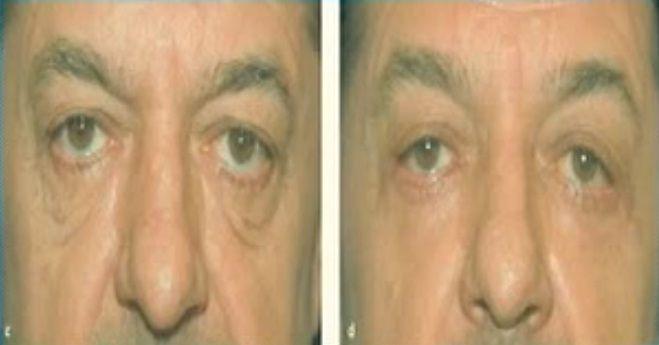 la blefaroplastia transconjuntival se aplica para eliminar las bolsas de los ojos