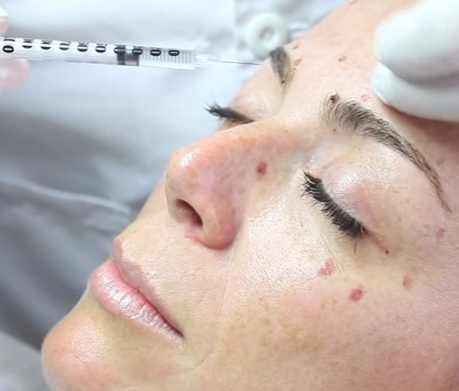 El botox y la blefaroplastia son una combinación perfecta en el tratamiento contra el envejecimiento.