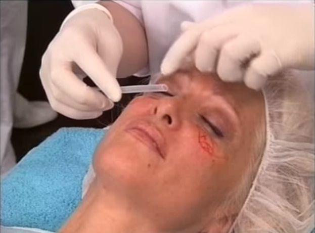 La blefaroplastia es una de las mejores opciones para quitar las ojeras.