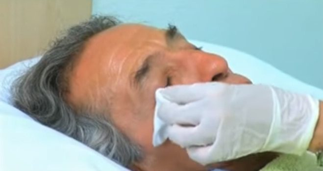 La recuperación de la blefaroplastia siempre es un tema extremadamente complejo