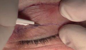 lipofilling y blefaroplastia