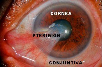 El pterigión es una enfermedad ocular